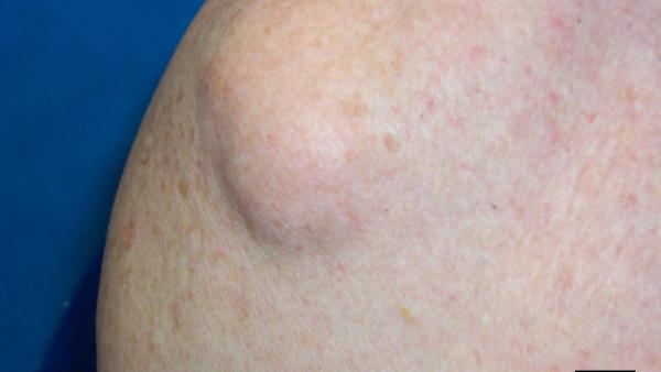Fettkul i huden (lipom) - NHI.no