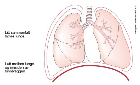 Total pneumothorax