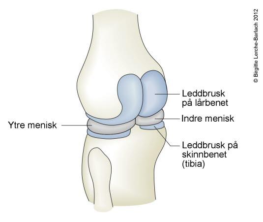 artrose kne grad 2