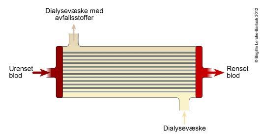 Dialysefilter