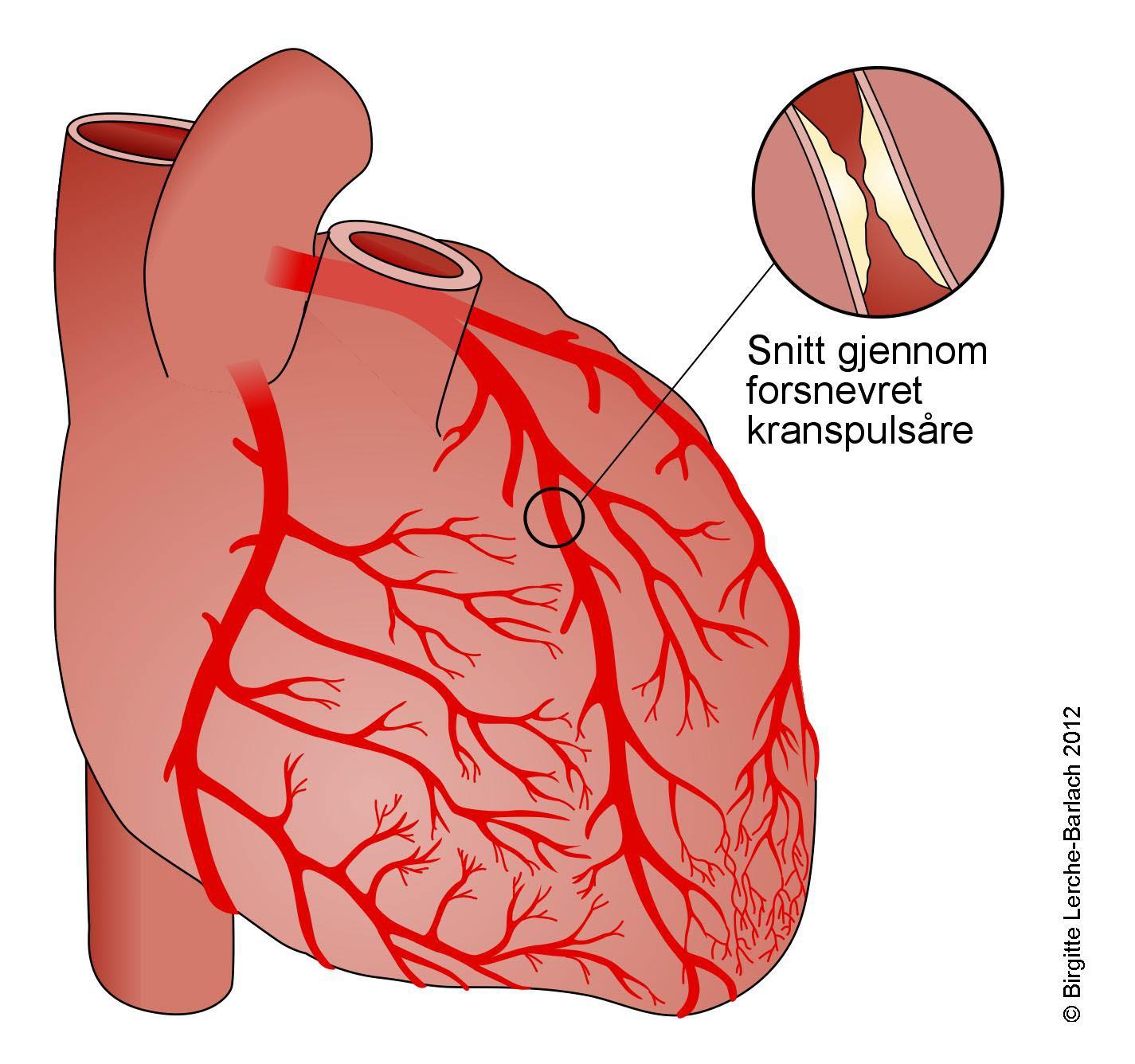 Bypass Operasjon Hjerte
