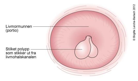 klump i skjedeåpningen cyster i underlivet