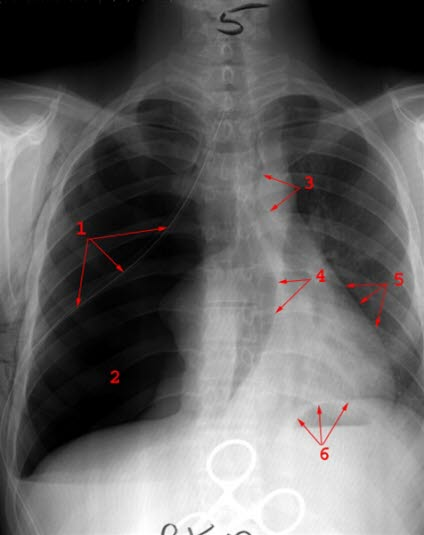 Ventilpneumothorax