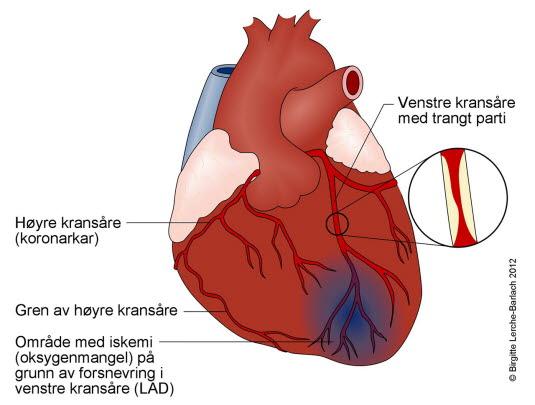 blokking av blodårer til hjertet