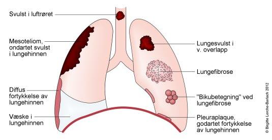 godartet svulst i lungen