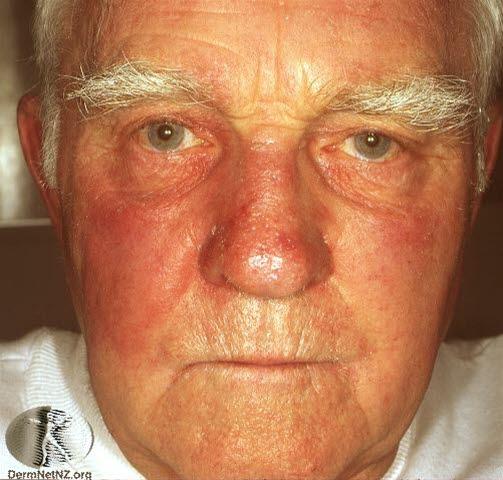 hudinfeksjon i ansiktet