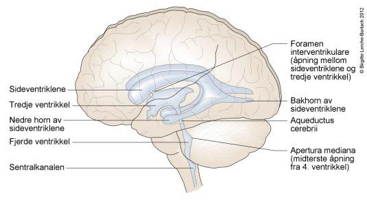 Økt Trykk I Hjernen