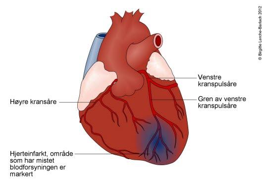 tidlige tegn på hjerteinfarkt