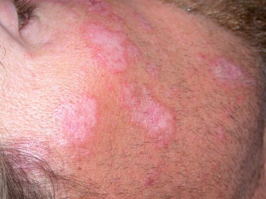 lupus symptomer hud