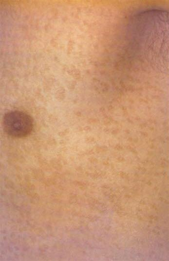 svamp i huden pigment