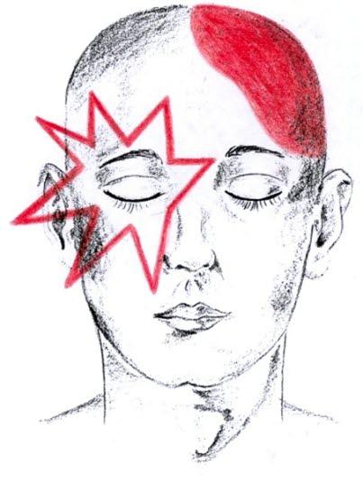 hva er migrene med aura