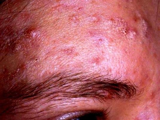 behandling av akne i ansiktet