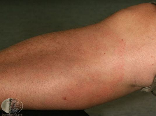 Borreliose, erythema chronicum migrans