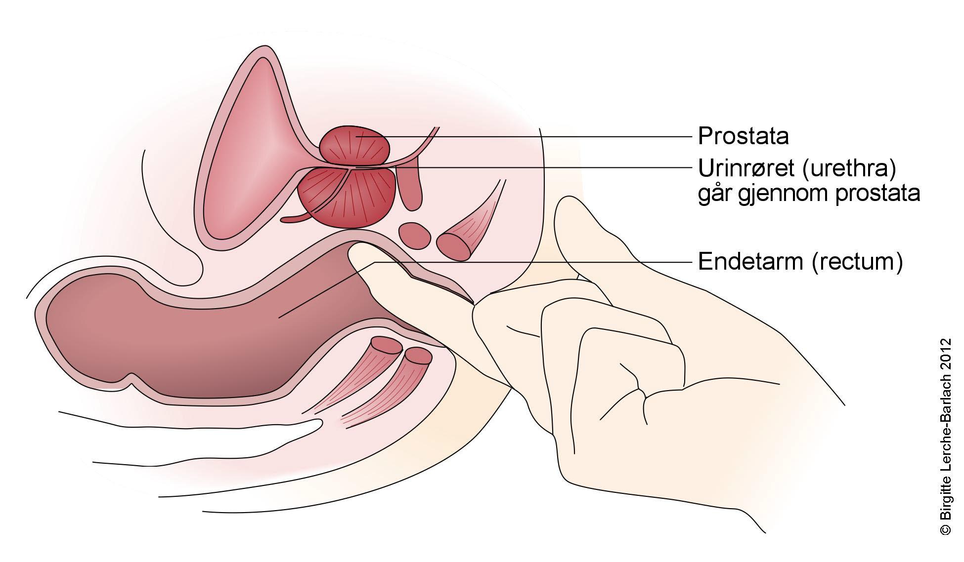 A loin fáj a prosztatitisből