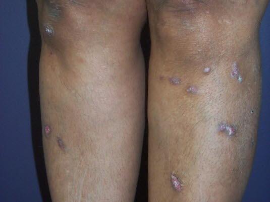 lichen simplex behandling