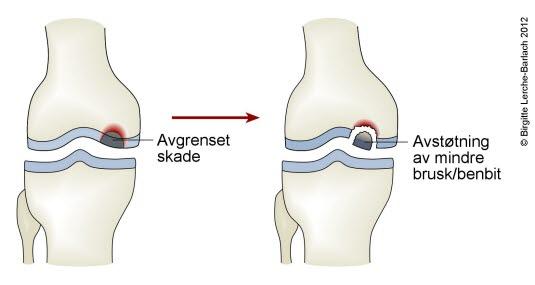 bruskskade kne symptomer