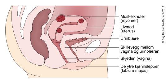 cyste i magen gravid smerter nederst i magen
